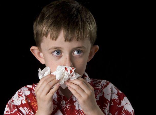 Как остановить кровушка из  носа: советы медиков